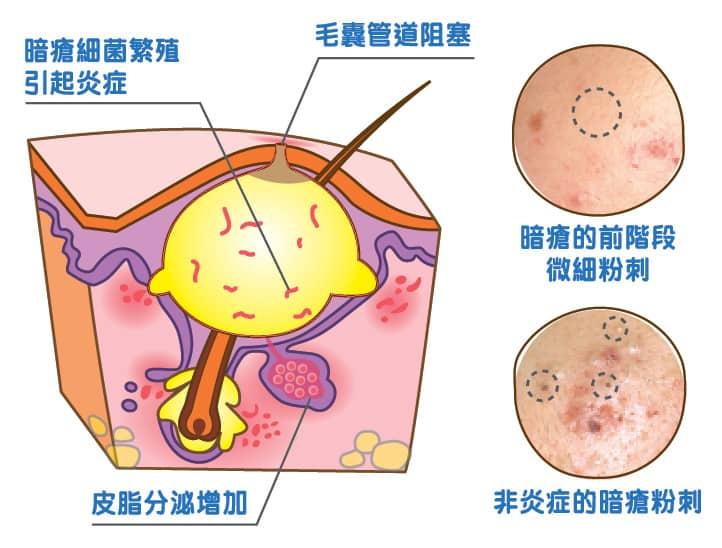 【網購iHerb】口罩焗痘救星!暗瘡殺手系列